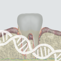 Uncovering the Progression of Gingivitis to Periodontitis